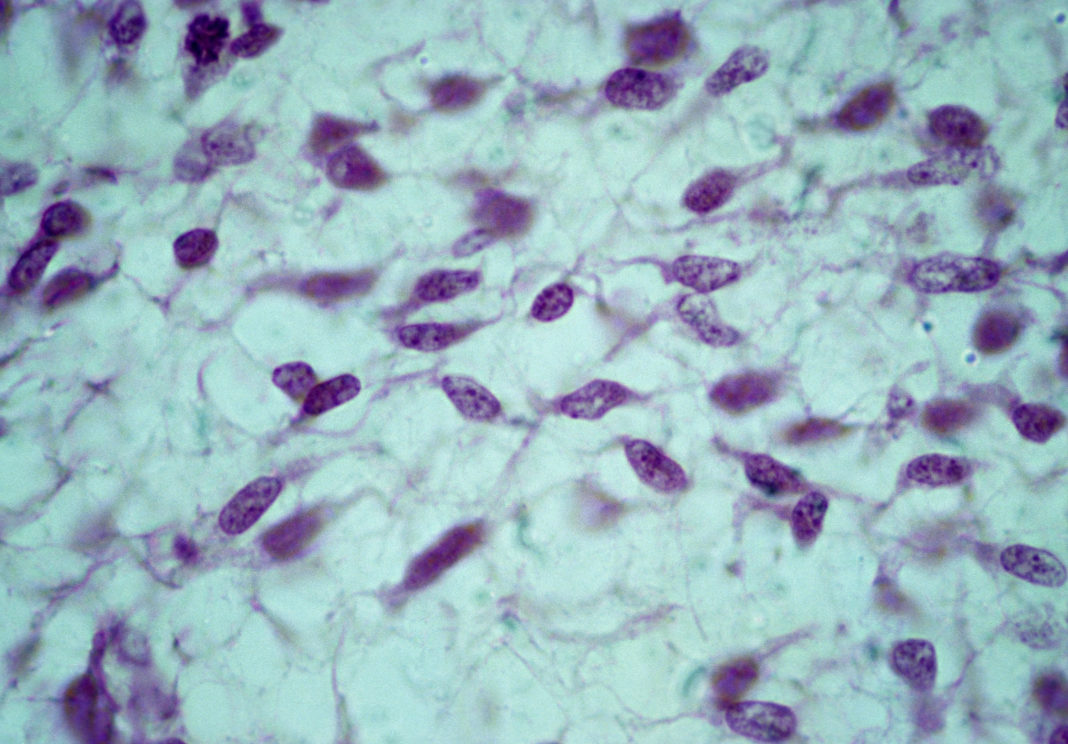 Mesenchyme. Mesenchymal (stem) cells, embryonic connective tissue, 250X at 35mm. Shows: mesenchymal cells, fluid ground substance, and fibers.